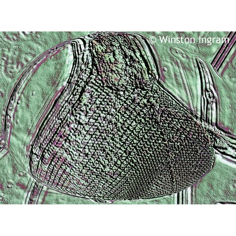Microscopy Diatoms | Microbus Microscope Educational Website